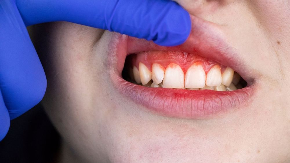 Causes and treatments for periodontal disease