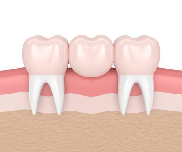 dental bridges in Berwin